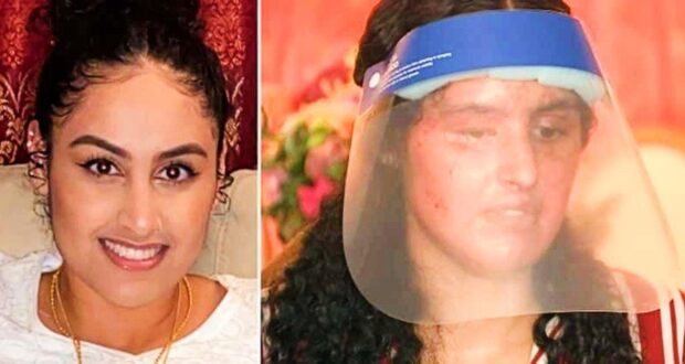 Pakistani student blinded, disfigured in acid attack outside her home in US